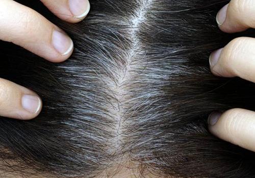Dầu cám gạo ngăn ngừa bạc tóc sớm